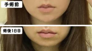 唇の腫れの比較
