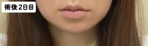 抜歯手術後2日目のほっぺと唇の腫れ具合