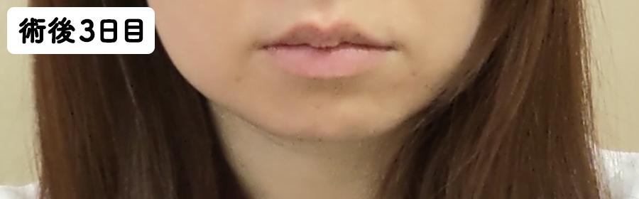 抜歯手術後3日目のほっぺと唇の腫れ具合
